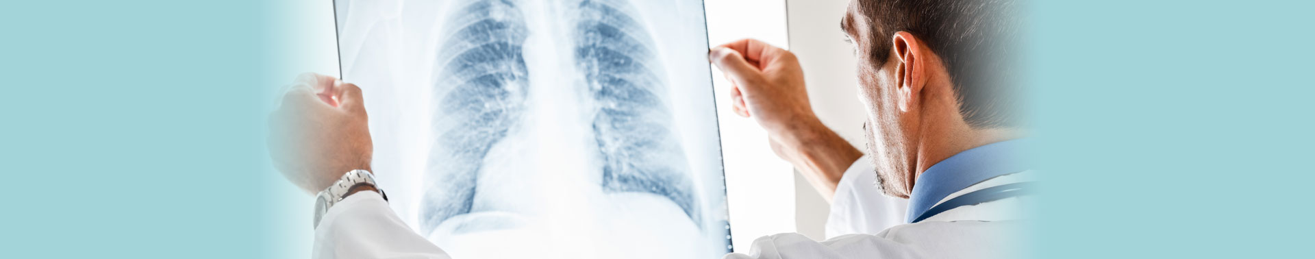 Lung Cancer Immunotherapy Factsheets